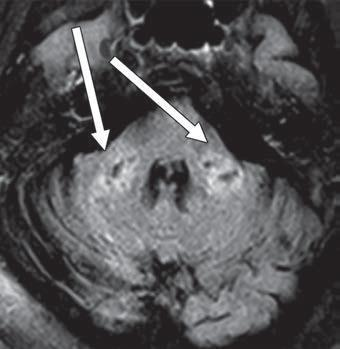 Axial FLAIR MR image shows T2 prolongation in bilateral middle cerebellar peduncles (arrows). Findings were associated with restricted diffusion and areas of T1 hypointense signal without enhancement or abnormal susceptibility. Image courtesy ofAmerican Roentgen Ray Society (ARRS), American Journal of Roentgenology (AJR)