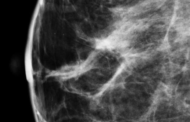 North Dakota, Breast Density and Reporting Bill, dense breast tissue