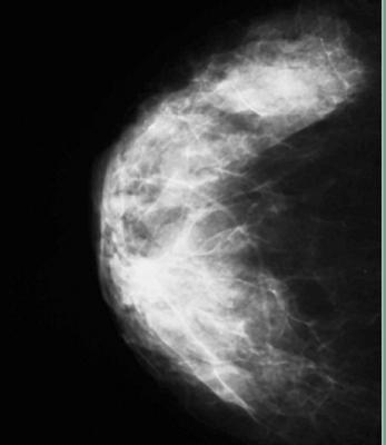 Volpara, VolparaDensity, 31st installation, Belgium, breast density