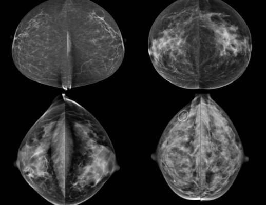breast density, evaluation, BI-RADS, unreliable, UC Davis study