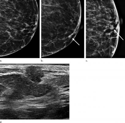 Images show symptomatic false-negative cancer in a 73-year-old black woman who presented with a palpable abnormality 64 days after negative screening mammography. (a) Negative screening left digital breast tomosynthesis (DBT) mammogram. (b) Diagnostic DBT mammogram shows a new palpable mass (arrow). (c) Spot-compression DBT mammogram enables confirmation of mass (arrow). (d) Ultrasound (US) image shows hypoechoic mass with angular margins. Subsequent US-guided biopsy revealed estrogen receptor- and progeste