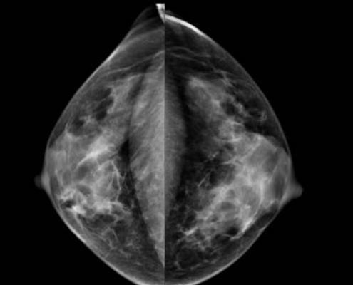 New Hampshire, breast density inform bill, January