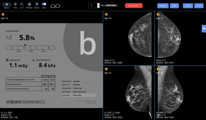 Radiologists around the world will have access to a first-of-its-kind online breast density training tool designed to improve radiologists' ability to correctly identify women's breast density categories to comply with the Breast Imaging-Reporting and Data System (BI-RADS), thanks to a collaboration between DetectED-X and Volpara Health.