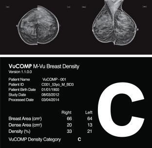 VuCOMP Mammography M-Vu Breast Density M-Vu Cad Turkey