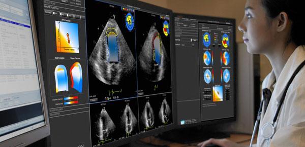 Choosing Wisely ASE Echocardiogram