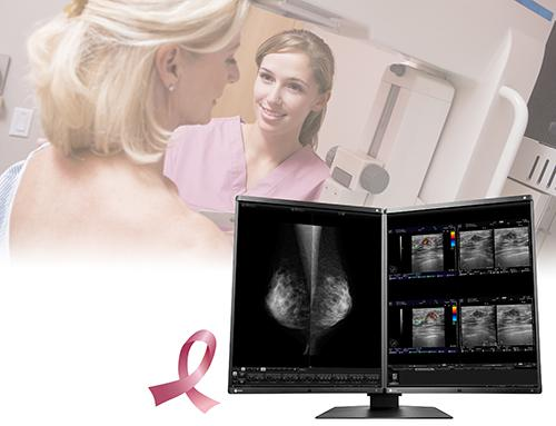 Eizo RadiForce RX560 Monitor Receives FDA 510(k) for Tomosynthesis and Digital Mammography