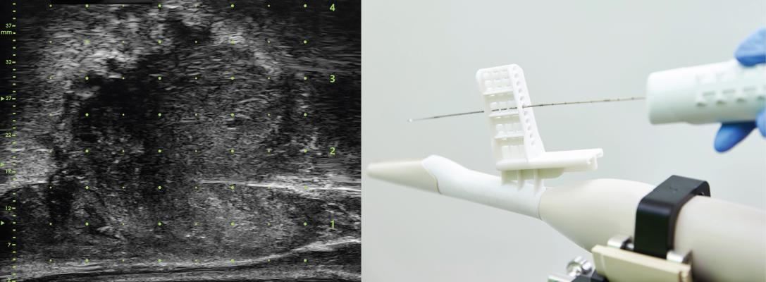 Exact Imaging Receives FDA 510(k) Clearance for Sterile Transperineal Needle Guide
