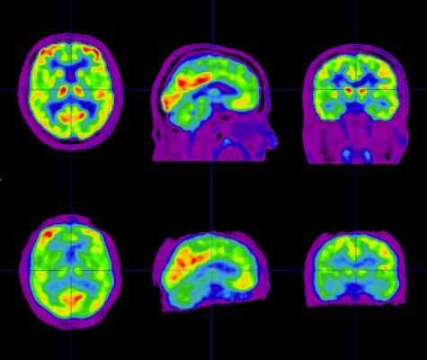 Positrigo reports completion of the ExploreBPET clinical study, using the novel investigational medical device BPET for imaging of the human brain