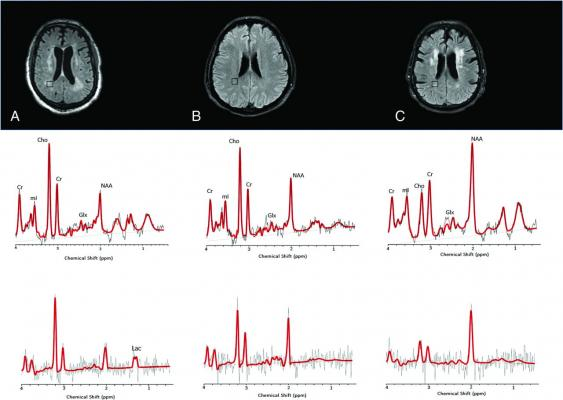 1H-MR spectra of 3 consecutive patients with COVID-19.Upper row: Axial FLAIR images at the corona radiata level show representative MRS voxels (black squares) from sampled periventricular regions.Lower row: Corresponding spectrum (black) and LCModel fit (red) from each patient acquired at TE=30 ms (upper row) and TE=288 ms (lower row).A, A patient with COVID-19-associated multifocal necrotizing leukoencephalopathy shows diffuse patchy WM lesions with markedly increased Cho and decreased NAA, as well