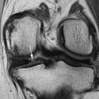 Meniscal tears, sagittal, arthritis, cartilage loss