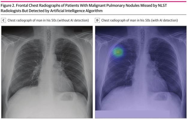 Study conducted by medical AI startup Lunit and Massachusetts General Hospital, published in JAMA Network Open - When used as a second reader, the AI algorithm may help detect lung cancer