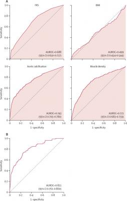 AUROCs for predicting overall survival. (A) AUROCs for the clinical parameters of FRS and BMI, as well as univariate CT measures of aortic calcification and muscle density for predicting overall survival over a 5-year time period