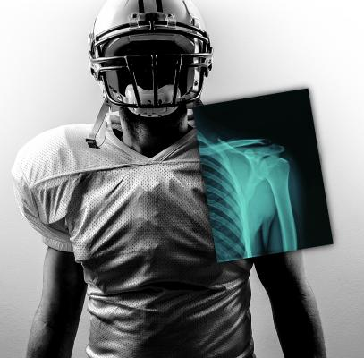 Carestream, 2015 NFL Combine, DRX-1, UBMD, digital radiography, X-ray, DR