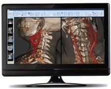 Fovia Medical Inc. Contrast Imaging High Definition Volume Rendering