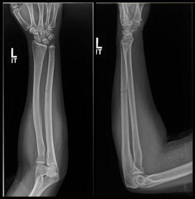 Up to one-third of women who sustain a fracture to the ulna bone of the forearm may be victims of intimate partner violence