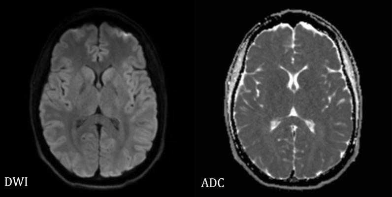 Whole body diffusion-weighted magnetic resonance imaging (DW MRI) may aid in the assessment of cancer treatment response in children and youth at much lower levels of radiation than current approaches, suggests a small study funded by the National Institutes of Health.