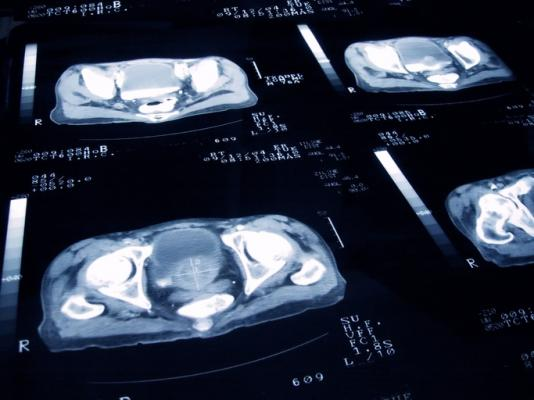 Metastasis-free survival is a strong surrogate endpoint for overall survival over biochemical failure for men receiving salvage radiotherapy for recurrent prostate cancer