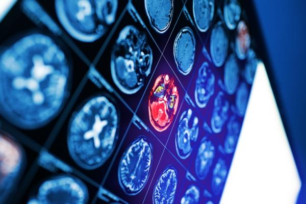 Breast cancer patients whose disease has spread to their brains fare better if their metastases are picked up before they begin to cause symptoms, according to a study presented at the 12th European Breast Cancer Conference.