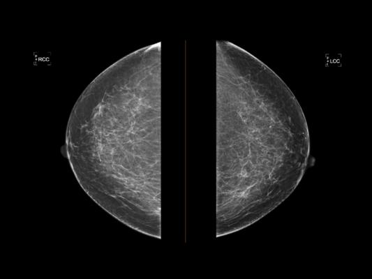 The American College of Radiology(ACR), Society of Breast Imaging(SBI), patient advocates and others secured an extension of the moratorium on harmful 2009 and 2016United States Preventive Services Task Force (USPSTF)Breast Cancer Screening Guidelines from Dec. 31, 2021 to Dec. 31, 2022.