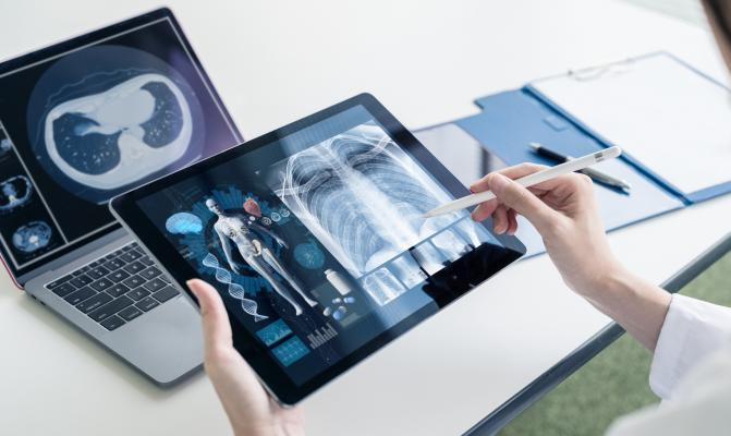 The global X-ray devices market is estimated to grow at a CAGR of 5.14% from a market size of USDX10.793 billion in 2019 to a market size of USD14.580 billion by 2025
