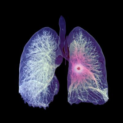 A comprehensive review by University of North Carolina researchers and colleagues of hundreds of publications, incorporating more than two dozen articles on prevention screening for lung cancer with low-dose spiral computed tomography (LDCT), shows there are both benefits and harms from screening