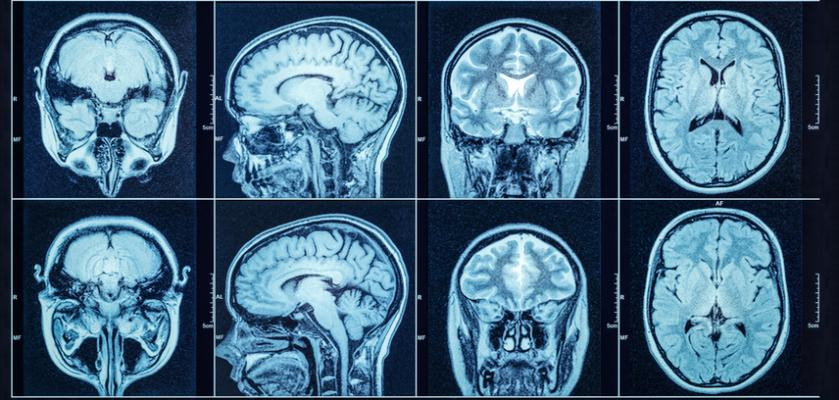 A new Yale-led study shows that a portable magnetic resonance imaging (MRI) device can help identify such intracranial hemorrhages, potentially life-saving information particularly in areas or scenarios where access to sophisticated brain imaging scans are not readily available.