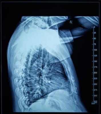 Despite receiving high radiation doses to their tumors, lung cancer patients treated with technique that spares a large part of the esophagus did not develop severe inflammation of the esophagus
