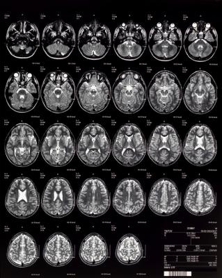 pediatric MRI brain imaging in children