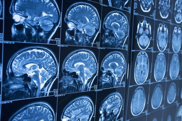 Collaborative research between the University of Kentucky (UK) and University of Southern California (USC) suggests that a noninvasive neuroimaging technique may index early-stage blood-brain barrier (BBB) dysfunction associated with small vessel disease (SVD).