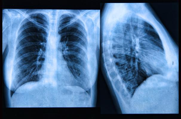 Revised guidelines for lung cancer screening eligibility are perpetuating disparities for racial/ethnic minorities, according to a new study inRadiology.