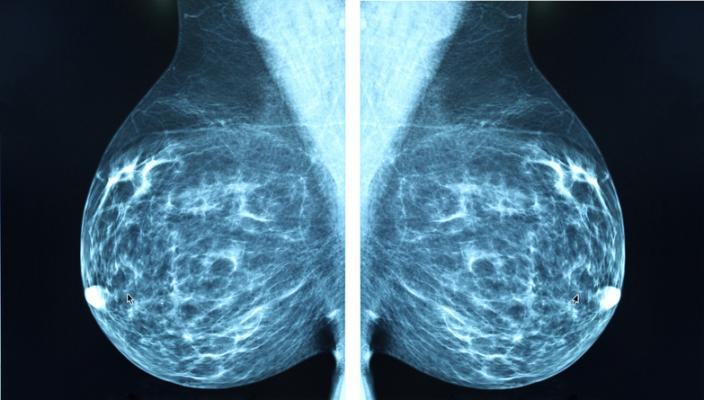 Researchers said women who skip even one scheduled mammography screening before a breast cancer diagnosis face a significantly higher risk of dying from the cancer.