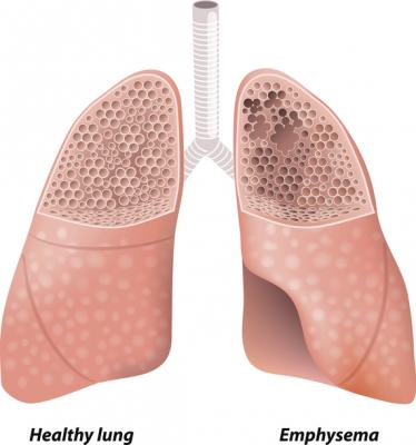 #emphysema #marijuana 2021 ARRS Virtual Annual Meeting research reveals increased rates of emphysema in marijuana smokers, compared to both non-smokers and tobacco-only smokers, as well as greater rates of paraseptal emphysema