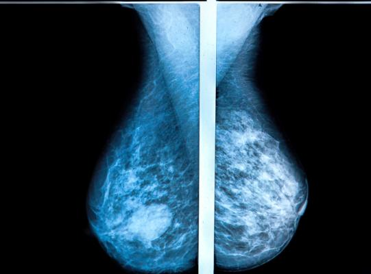 3-D mammography reduces the number of breast cancer cases diagnosed in the period between routine screenings, when compared with traditional mammography, according to a large study from Lund University in Sweden. The results are published in the journalRadiology.
