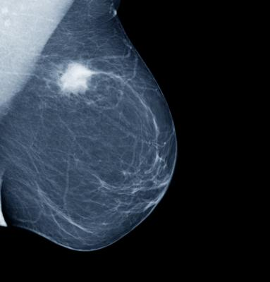 A study involving researchers at Karolinska Institutet and Gothenburg University in Sweden has found that low levels of a protein called PDGFRb are associated with particularly good results of radiotherapy in women with early-stage breast cancer.
