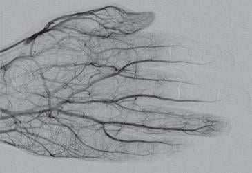 DSA image obtained approximately 24 hours after 1 mg/h IA tPA infusion, 500 U/h heparin via peripheral IV, and daily oral aspirin (81 mg) shows improved perfusion of digital arteries, albeit with suboptimal vascular blush of distal second and third phalanges
