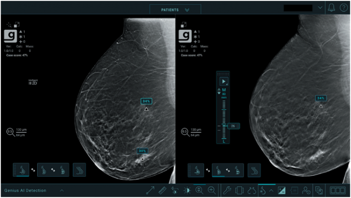 Studies show new deep-learning algorithm helps radiologists detect breast cancers in their early stages when used with the Genius3D Mammographyexam