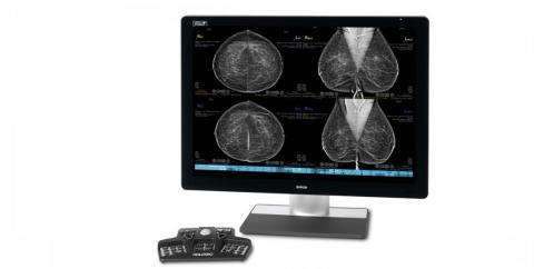 Collaboration will include data sharing, R&D and an upgrade of RadNet's fleet of mammography systems to Hologic's state-of-the-art imaging technology