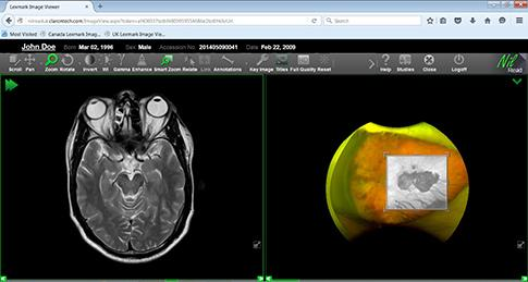 Hyland Healthcare Adds ImageNext Imaging Workflow Optimizer to Enterprise Imaging Suite