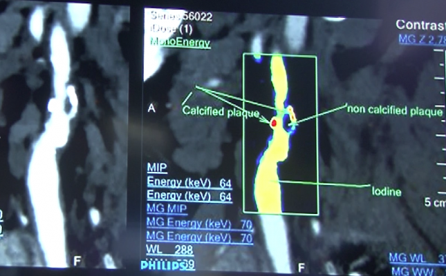 Spectral imaging of arteries