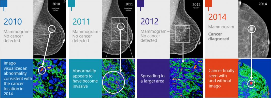 Imago Systems Announces Collaboration With Mayo Clinic for Breast Imaging