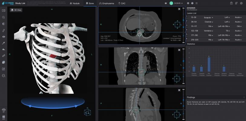 Infervision Introduces AI Capabilities for Chest CT Reading