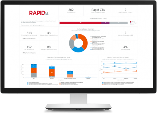 New RapidAI Insights improves hospitals' understanding of their stroke businesses, as well as patient workflow and outcomes