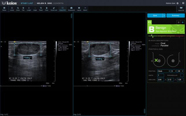 FDA Clears Koios DS Breast 2.0 AI-based Software