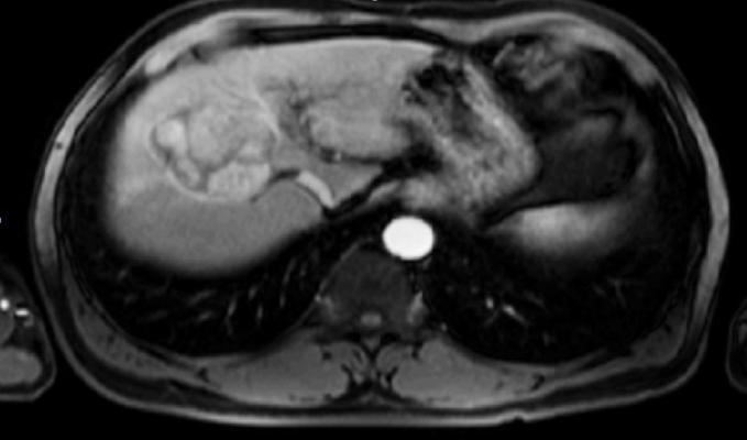 ACR LI-RADS Steering Committee Releases New Version of CT/MRI LI-RADS