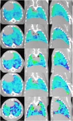 In vivo ventilation/perfusion (V/Q) imaging