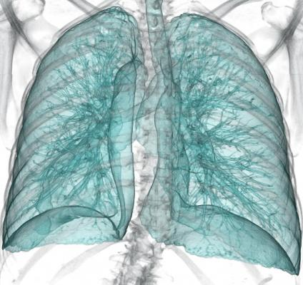 Lung cancer, CT systems, PACS Accessories, RSNA 2014