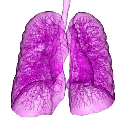 Lung cancer patients who are inactive prior to chemoradiation are less likely to tolerate treatment and more likely to see their cancer return