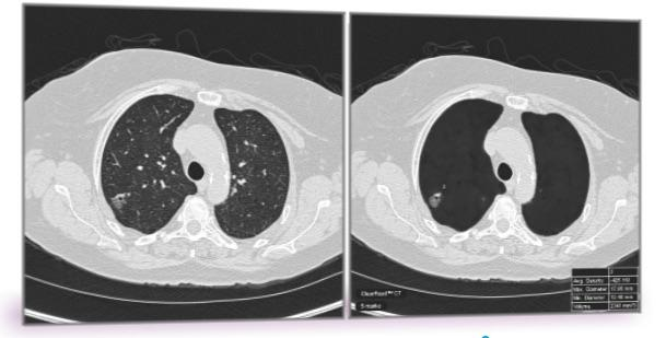 Researchers Use Radiomics to Overcome False Positives in Lung Cancer CT Screening