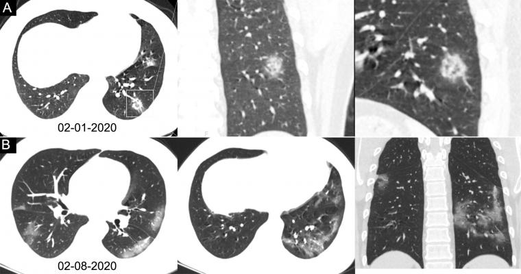 Chest CT images in a 34-year-old man with fever for 4 days. Positive result of reverse-transcription polymerase chain reaction assay for severe acute respiratory syndrome coronavirus 2 using a swab sample was obtained on February 8, 2020. Dates of examination are shown on images. A, Chest CT scan with magnification of lesions in coronal and sagittal planes shows a nodule with reversed halo sign in left lower lobe (box) at the early stage of the pneumonia. B, Chest CT scans in different axial planes and coro
