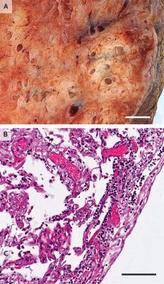 Lymphocytic Inflammation in a Lung from a Patient Who Died from Covid-19. The gross appearance of a lung from a patient who died from coronavirus disease 2019 (Covid-19) is shown in Panel A (the scale bar corresponds to 1 cm). The histopathological examination, shown in Panel B, revealed interstitial and perivascular predominantly lymphocytic pneumonia with multifocal endothelialitis (hematoxylin–eosin staining; the scale bar corresponds to 200 μm).